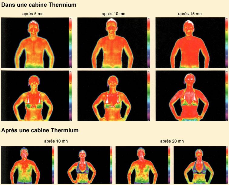 rayonnement thermium